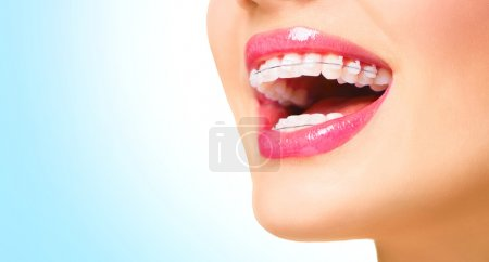 Photo for Beautiful woman smiling. Closeup ceramic braces on teeth - Royalty Free Image