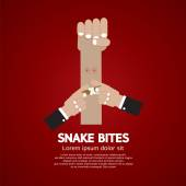 Snake Bites On Forearm Vector Illustration