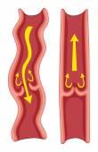 Varicose veins in human body