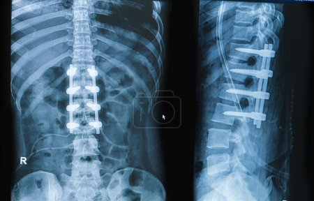 x-ray image of back pain show spinal column with implant fusion