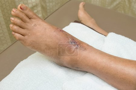 ankle wound suture