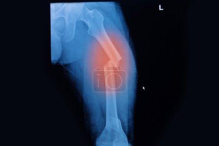 Fractured Femur, Broken leg x-rays image