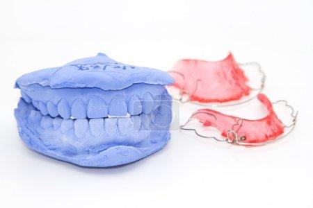 Photo pour Plâtre dentaire prothèse et gypse modèle blanc - image libre de droit