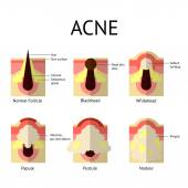 Types of acne pimples Healthy skin Whiteheads and Blackheads Papules and Pustules in flat style