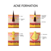 Formation of skin acne or pimple The sebum in the clogged pore promotes the growth of a certain bacteria Propionibacterium Acnes This leads to the redness and inflammation associated with pimples