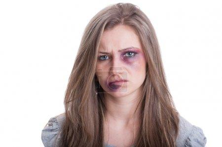 Photo pour Femme blessée avec un œil et une lèvre meurtris. Concept de violence domestique contre les femmes sur fond blanc - image libre de droit