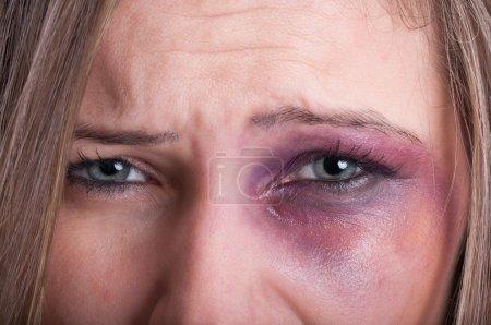 Photo pour Gros plan sur les yeux tristes d'une femme victime de violence conjugale - image libre de droit