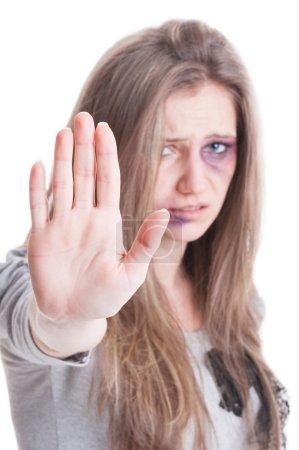 Photo pour Halte à la violence domestique contre les femmes concept avec une femme blessée et meurtrie violentée sur fond blanc - image libre de droit
