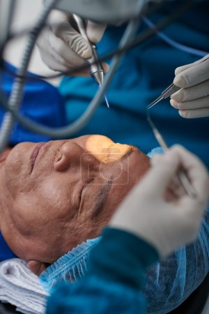 medical workers performing cataract surgery