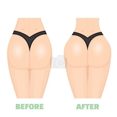 Increase buttocks consept
