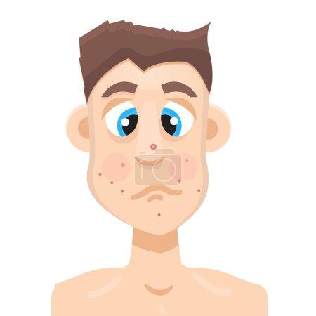 adult acne man
