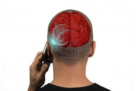 Phone radiation in the brain