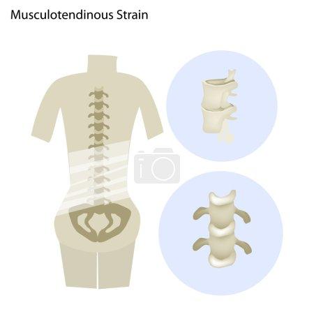 Illustration of Musculotendinous Strain or Lumbar Spine