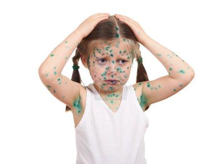 child has the virus on skin