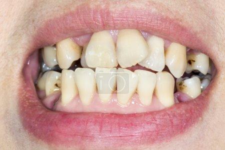 Crooked teeth before braces...