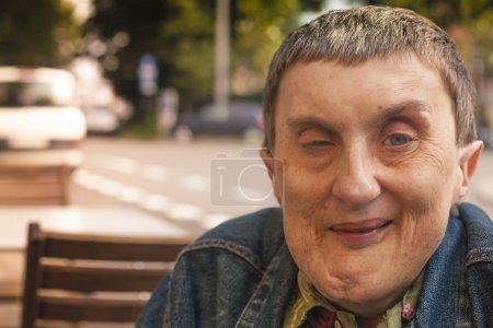 Hombre discapacitado sentado en un café al aire libre