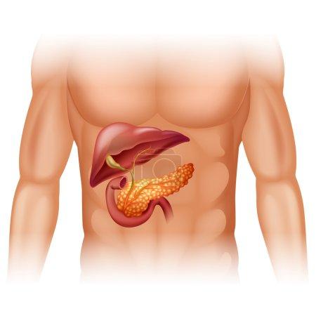 Pancreas cancer diagram in detail
