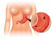 Stomach Ulcer diagram in woman