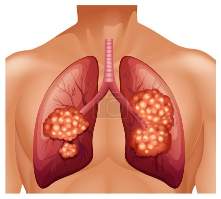 Illustration for Lung cancer in human illustration - Royalty Free Image