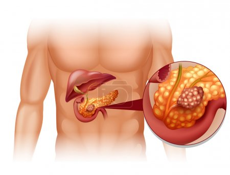 Pancreas cancer in human body