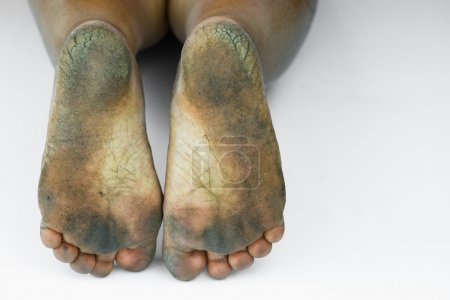 Photo for Dirty foot or cracked heels isolate on white background, medical or feet health of the people, medical center for heels or feet. - Royalty Free Image