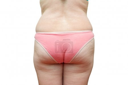 Photo for The body of a fat woman on a white background. - Royalty Free Image