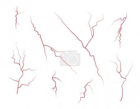 Set of human eye veins, red blood vessels, blood s...