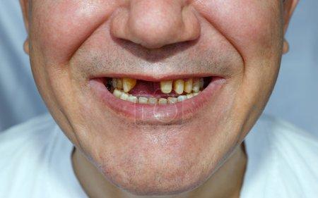 Photo pour Un homme sans deux dents et épluché les dents du haut pour l'installation d'un pont avec un visage rayé - image libre de droit