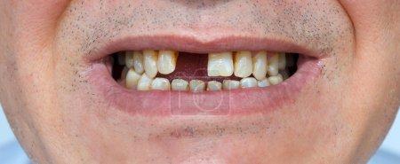 Photo pour Sourire pour hommes sans dents et à poils - image libre de droit