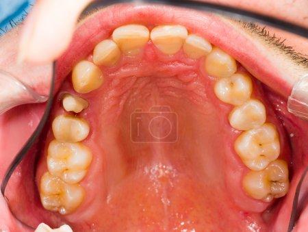 Photo pour Image d'une dent avant d'obtenir une couronne dentaire. - image libre de droit