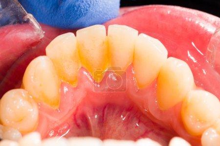 Photo pour Plaque dentaire dans la bouche humaine sur la prothèse dentaire . - image libre de droit
