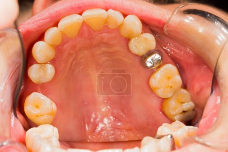 Photo pour Bases métalliques pour future ceramiic Couronne pour patient. - image libre de droit