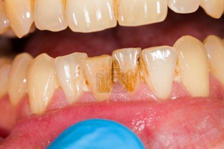 Photo pour Plaque dentaire sur la prothèse dentaire, signe de tabagisme . - image libre de droit