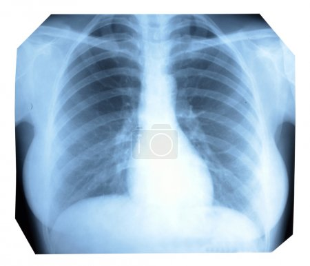 Photo X-ray of a healthy lung and heart