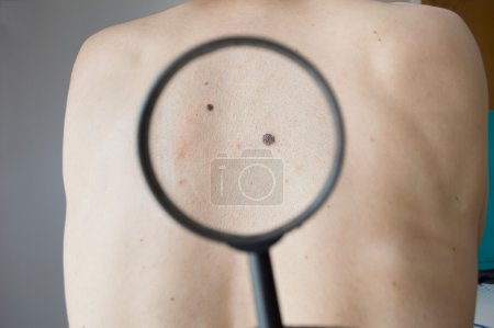 Checking melanoma on the back of a man