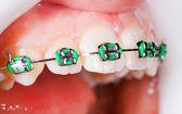 Zuby se závorkami
