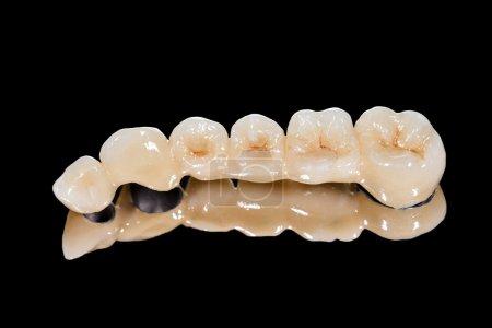 Photo pour Pont en céramique dentaire sur fond noir isolé - image libre de droit