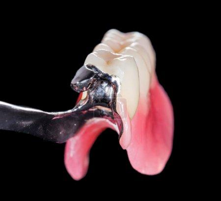 Photo pour Closeup of dental skeletal prosthesis with porcelain crowns - image libre de droit