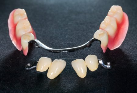 Photo for Closeup of dental skeletal prosthesis with porcelain crowns - Royalty Free Image