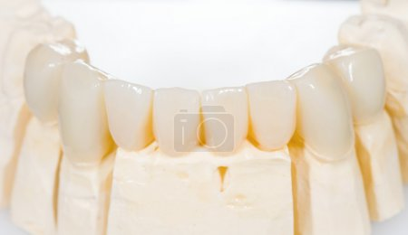 Photo pour Pont en céramique dentaire sur fond blanc isolé - image libre de droit