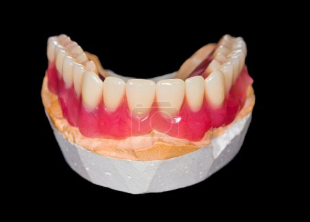Artificial lower denture on isolated  black backgr...