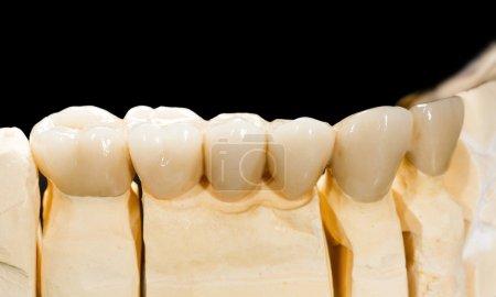 Photo pour Photo rapprochée d'un pont en céramique dentaire - image libre de droit
