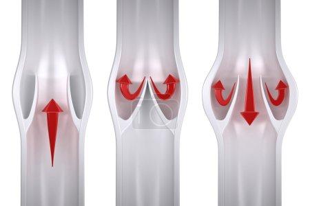 Normal vs Varicose - Vein Anatomy