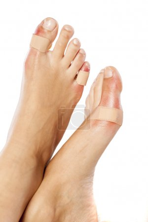toes with plaster