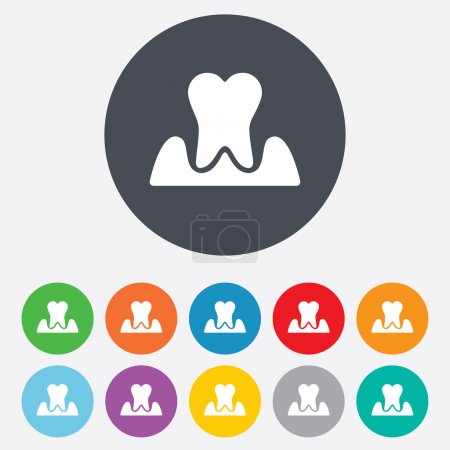 Parodontosis tooth signs