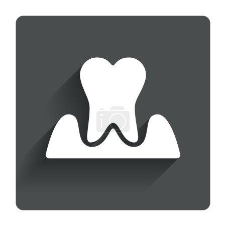 Parodontosis tooth sign