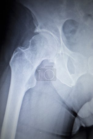 X-ray scan  image of hip joint replacement orthopedic implant