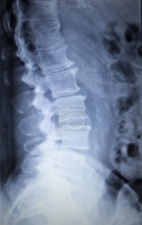 Photo pour X-ray orthopedic medical CAT scan of painful lower back spine injury in Traumatology hospital clinic. - image libre de droit