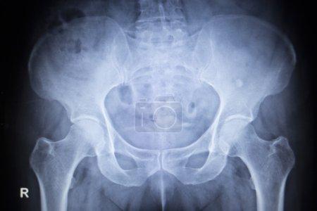 X-ray orthopedic scan  image of hip joints human skeleton