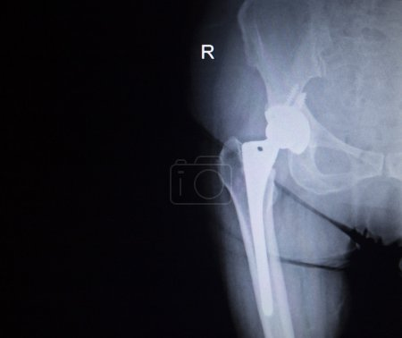 Photo pour X-ray scan  image of hip joints with orthopedic hip joint replacement implant head and screws in human skeleton in blue gray tones. Scanned in orthopedics traumatology surgery hospital clinic. - image libre de droit